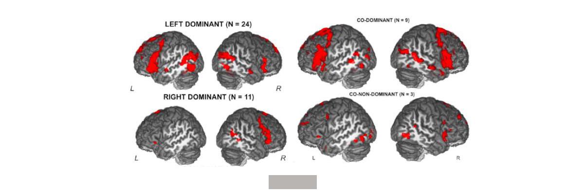 Permalien vers:De l'apprentissage supervisé pour identifier les patterns cérébraux de dominance hémisphérique du langage