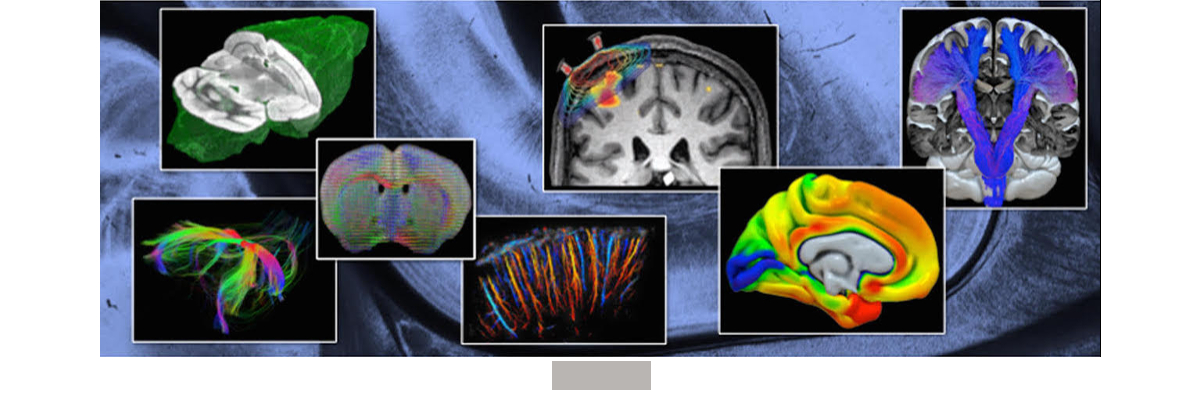 Permalien vers:Cajal course : Whole brain imaging