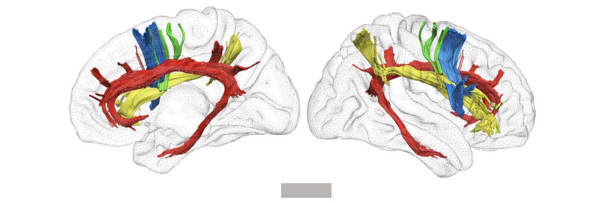 Permalink to:Les réseaux cérébraux à l'origine de la conscience de soi enfin identifiés