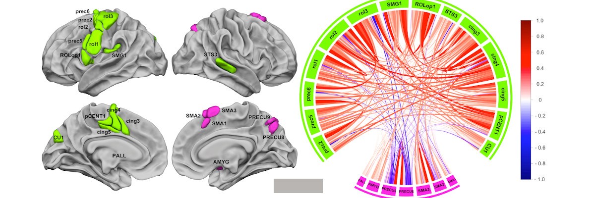 Permalink to:WMCA, Word-List Multimodal Cortical Atlas, a new model of the neural organization of Word-List